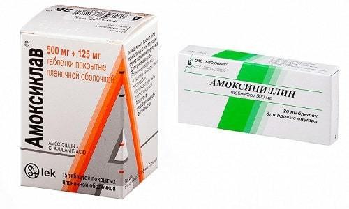 АМОКСИЦИЛЛИН или АМОКСИКЛАВ: что лучше и в чем разница (отличие составов, отзывы врачей)