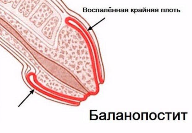 Белый налет на головке полового члена у мужчин под крайней плотью: причины и лечение