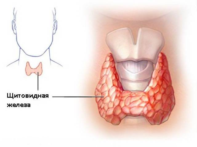 Гипотиреоз щитовидной железы: симптомы и лечение