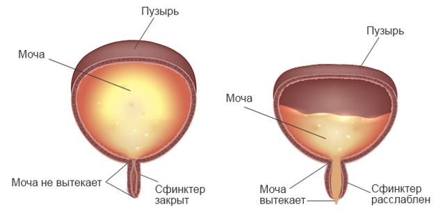 Может ли лопнуть мочевой пузырь