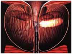 Лазерная абляция аденомы простаты: показания, виды (hifu, плазменная, игольчатая), ход операции, послеоперационный период (фото, видео)