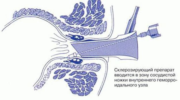 склеротерапия внутреннего геморроя