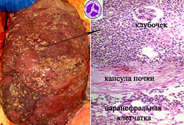 Интерстициальный нефрит: особенности, этиология, симптоматика заболевания