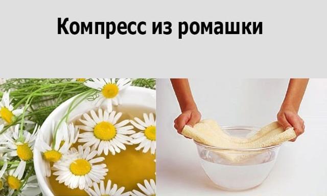 Лечение паховой грыжи народными средствами и методами