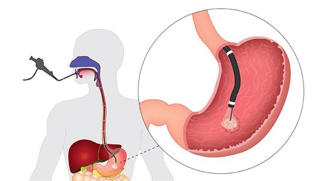 Невроз желудка, причины и симптомы, диагностика и лечение
