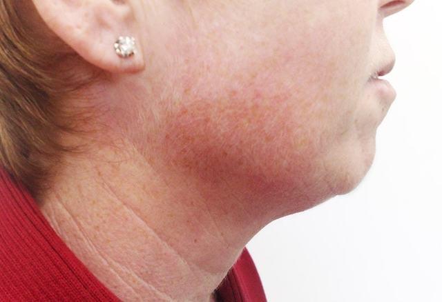 О каких болезнях могут рассказать темные пятна на шее