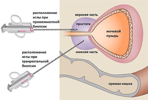 Классификация рака простаты - Шкала Глисона при раке предстательной железы
