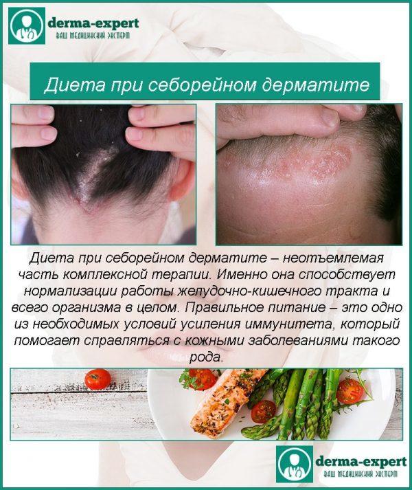 Диета при себорейном дерматите (себорее кожи)