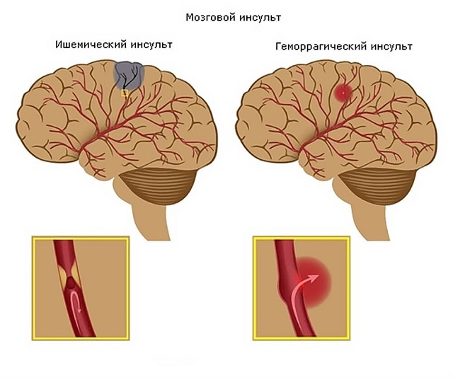 Венозный застой в голове: как улучшить отток крови