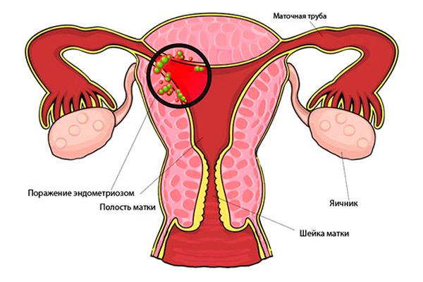 Можно ли забеременеть при уреаплазме: влияние на зачатие, плод, ЭКО и уреаплазмоз