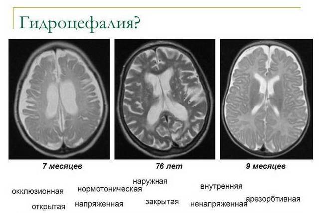 Умеренно выраженная наружная гидроцефалия головного мозга: что это такое?