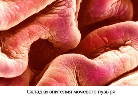 Болезни (заболевания) мочевого пузыря у женщин: виды, симптомы, диагностика, лечение