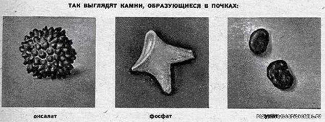 Почему возникают оксалатные камни в почках и как с ними бороться?