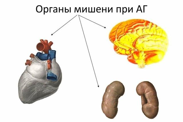 Гипертензия и гипертония отличия - в чем разница?