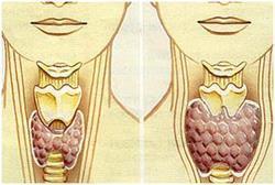 Лечение гипотиреоза щитовидной железы у женщин народными средствами