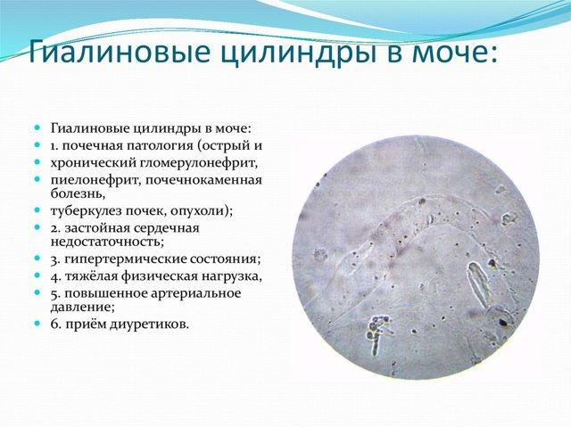 Анализ мочи по Нечипоренко при беременности