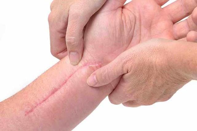 Обработка раны перекисью водорода: процент раствора, гнойной, открытой, аналог (чем заменить), как часто, как развести, после операции
