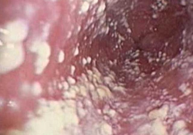 Зуд после, во время и перед месячными во влагалище: причины, что это такое, почему чешется?