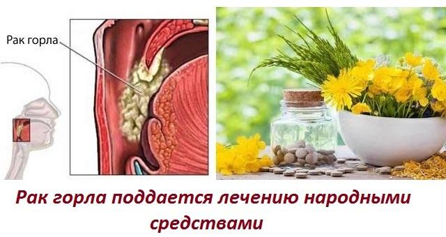 Рак горла и его симптомы: стадии, диагностика, народная медицина и профилактика