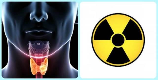 Базедова болезнь: причины и симптомы заболевания, как лечить?
