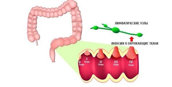 Лечение рака прямой кишки: причины развития, симптомы, диагностика и последствия