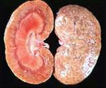 Острый нефрит: профилактика, возникновение, лечение