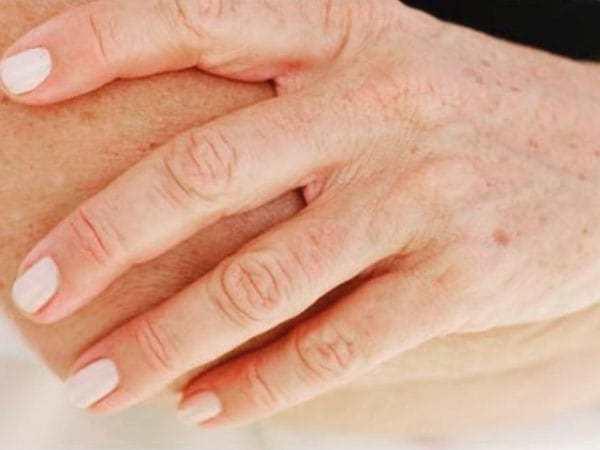 Пигментные коричневые пятна на руках после 50 лет: причины, лечение, как убрать