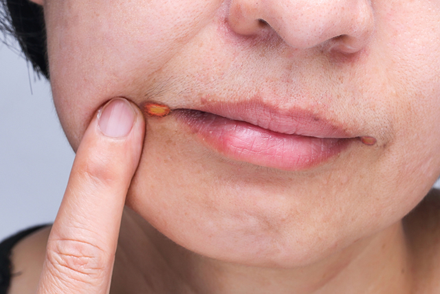 Лечение геморроя йодинолом - инструкция и отзывы