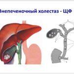 Застой желчи в желчном пузыре: лечение в домашних условиях