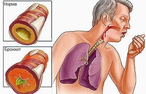 Бронхит у взрослых: симптомы и лечение