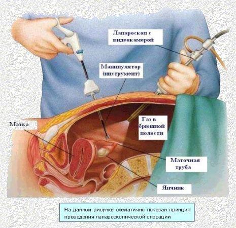 Лапароскопия кисты яичников: послеоперационный период, подготовка, восстановление