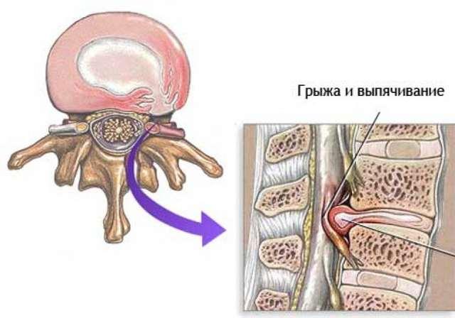 Обезболивающие при грыже позвоночника: как снять боль в поясничном отделе?
