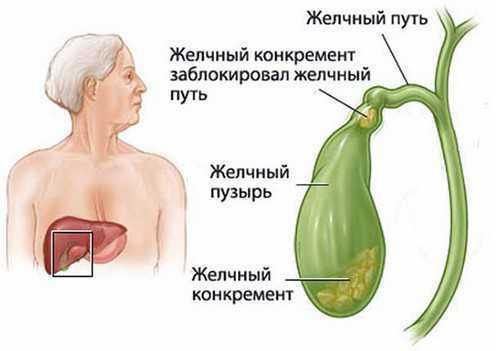 Хронический холецистит печени: лечение, симптомы, МКБ 10, клинические рекомендации, диета, стадии, обострение, формы (калькулезный, бескаменный)