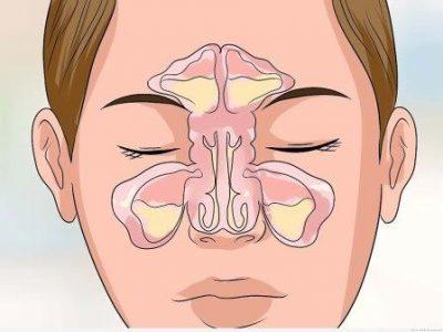 Хронический синусит: симптомы и лечение