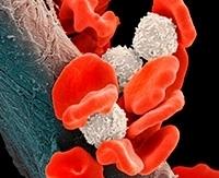 Диффузная В-крупноклеточная лимфома: прогноз, развитие заболевания