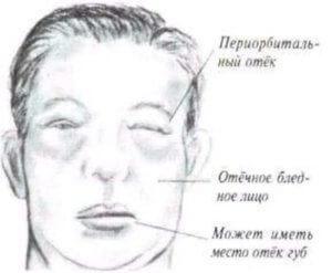 Простуда мочевого пузыря у мужчин: симптомы и лечение