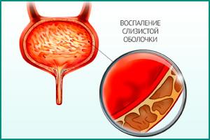 Что нужно делать при цистите у женщин: диагностика, лечение и профилактика