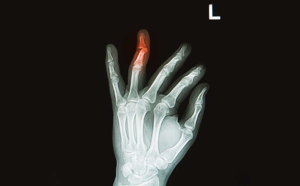 Перелом пальца руки (большого, фаланги, первого): симптомы, у ребенка, открытый, сколько носить гипс, как определить, со смещением, сколько заживает