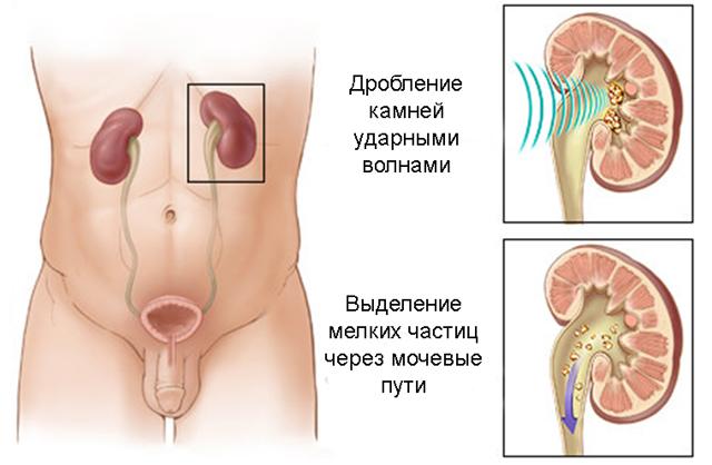 Камень в мочеточнике: как вывести, симптомы у мужчин и женщин, что делать?