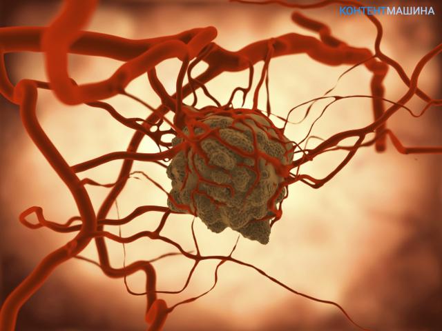 Доброкачественные и злокачественные опухоли: различия, развитие, последствия