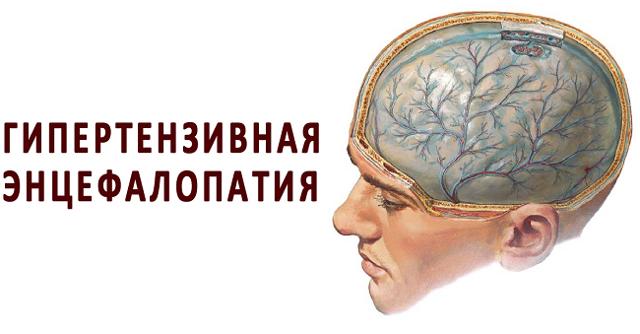 Гипертоническая энцефалопатия - что это такое, симптомы и лечение
