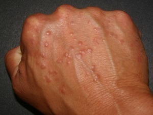 Водянистые пузырьки на коже тела чешутся: что это за покраснения?
